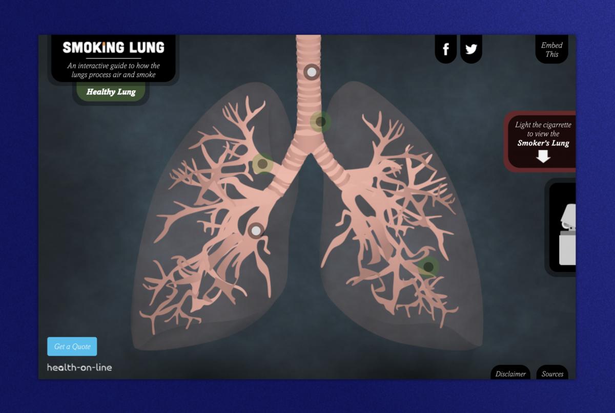 Smoker Lung homepage